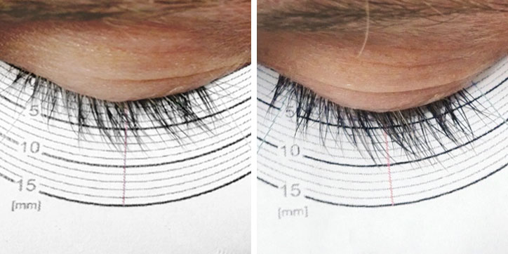 Before after result, clinical study of lashserum UCderm amazing lashes